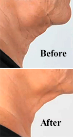 Before and After Cold Plasma Sub-D Neck Rejuvenation Treatment