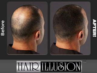 Hair Illusion Instant Hair Loss Solution
